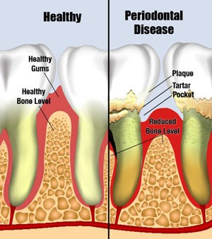 Hermitage Dental Healthy and Disease Gum Comparison