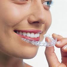 Hermitage Dental Invisalign® Model