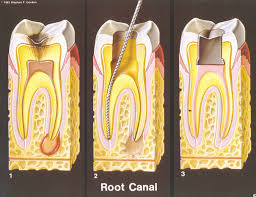 Hermitage Dental Root Canal Process
