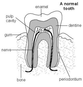 Hermitage Dental Tooth Abscess
